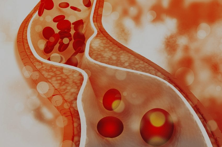 What Impact Can a Ketogenic Diet Have on Cholesterol?