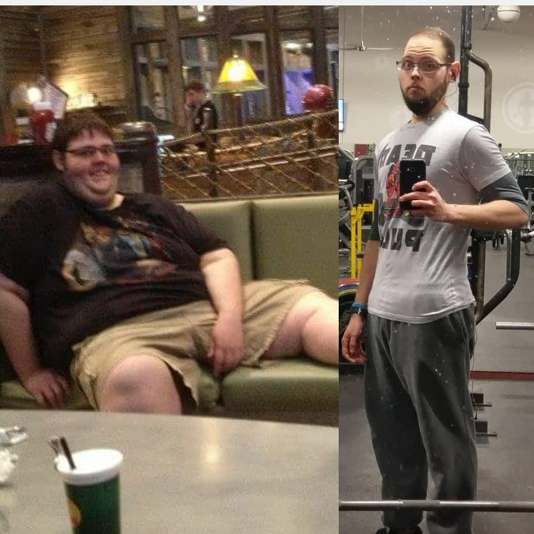 Dale's 335lb Keto Weight Loss Story