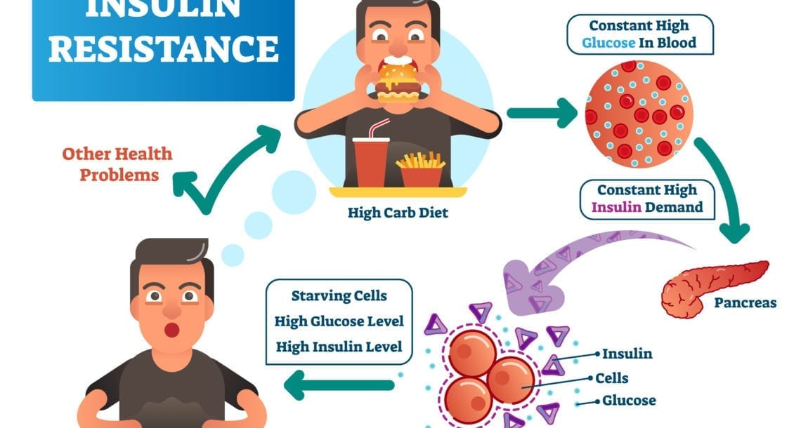 insulin resistance stages